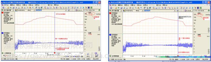 无创血压测量系统 小动物无创血压分析系统 软隆