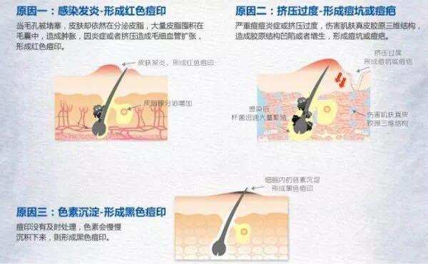 http://himg.china.cn/0/4_1022_237832_600_370.jpg