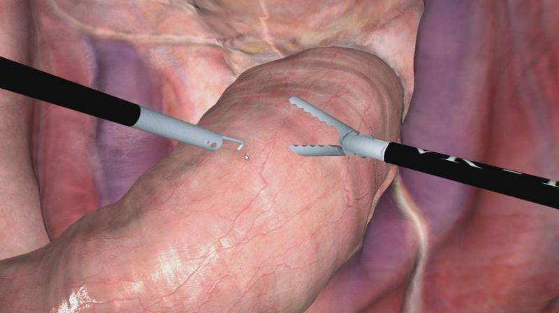 力反馈设备双手操作手术模拟演示