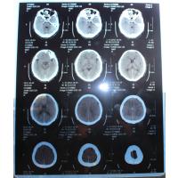 PET蓝基喷墨医用干式胶片医用打印胶片厂家批发放射科专用
