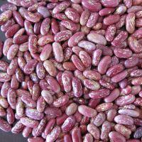大量供应红花芸豆 专做各类芸豆 来自芸豆之乡--黑龙江依安
