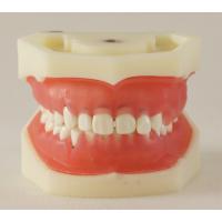 宏思特口腔教学模型HST-L5牙周病模型