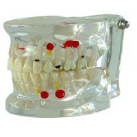 口腔教学模型及口腔模拟教学系统