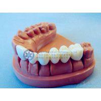 objet Eden数字牙科牙模3D打印机供应商