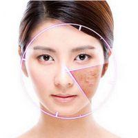 绝不含激素的面贴膜护肤品OEM加工厂激素依赖皮炎拿什么护肤品拯救你