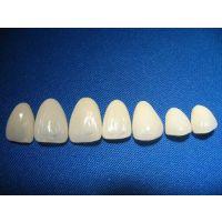 明芯瓷贴面,牙齿美白修复超薄瓷贴面
