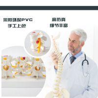 4阶段病变腰椎人体腰椎病态模型