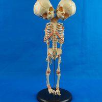 医学教学用双头婴儿骨骼模型