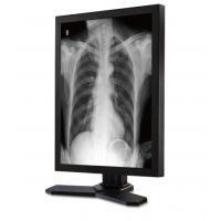 厂家直销诊断医用显示器 医疗显示屏 2MP灰阶