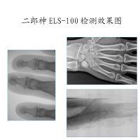 芯片器件 动物四肢 便携式X光机 二郎神 ELS-100