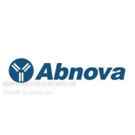 供应Abnova的单克隆抗体和蛋白生产商之一五月促销活动火热进行中
