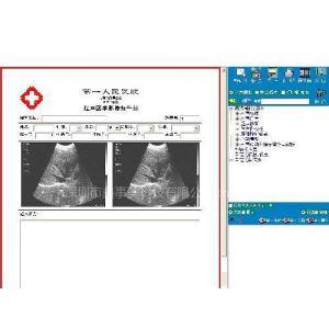 供应超声影像软件/B超工作站/B超图像采集卡