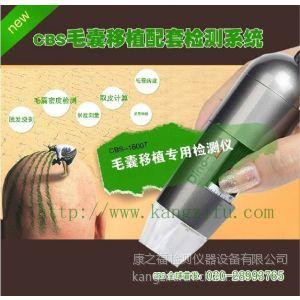 台湾超高清专业毛发分析仪 毛囊检测仪 毛发密度检测仪CBS-1600