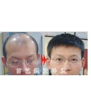 供应头发少怎么办?到广州首艺织发中心找找看