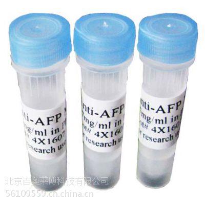 供应北京现货RBITC标记羊抗人C3抗体怎么卖