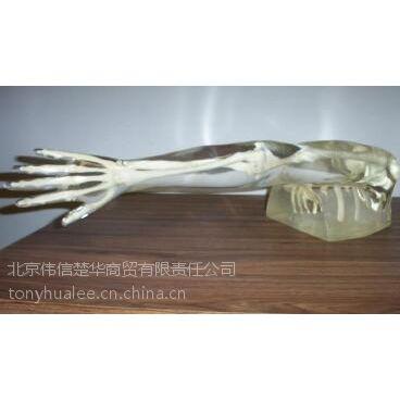 供应X射线影像(成像)模体