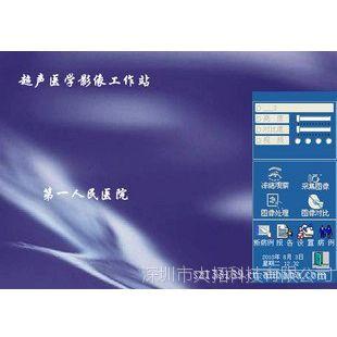 供应B超工作站软件   超声影像打印报告