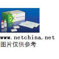 中西 金标渗滤法检测试剂/胃幽门螺杆菌(HP)抗体IgG/M 24T 库号:M388459