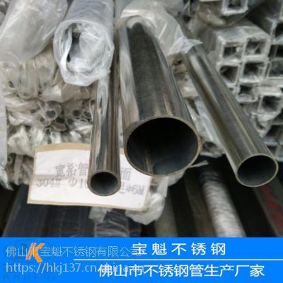 供应304不锈钢圆管22*1.5mm价格多少